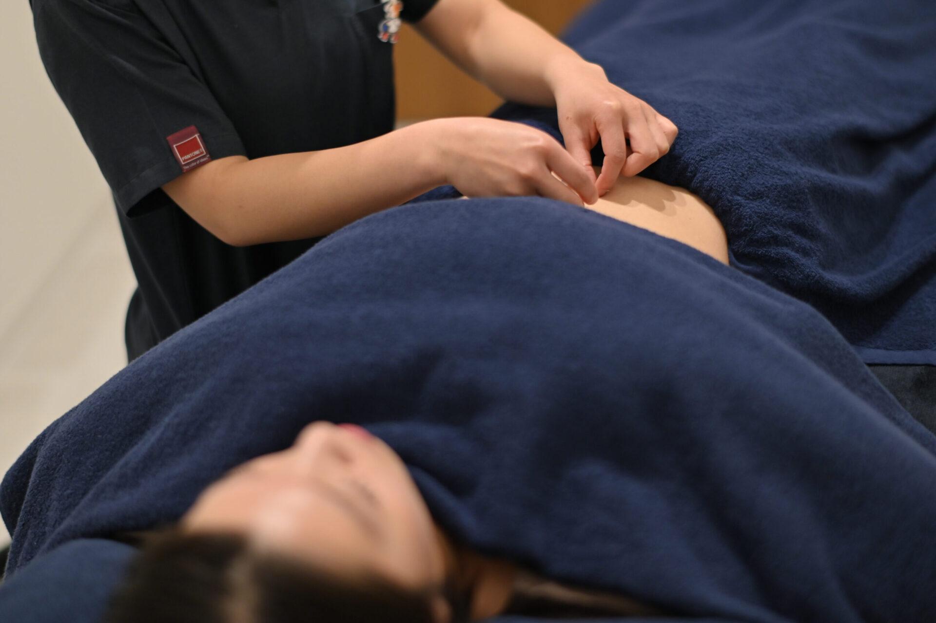 妊活鍼灸:イメージ
