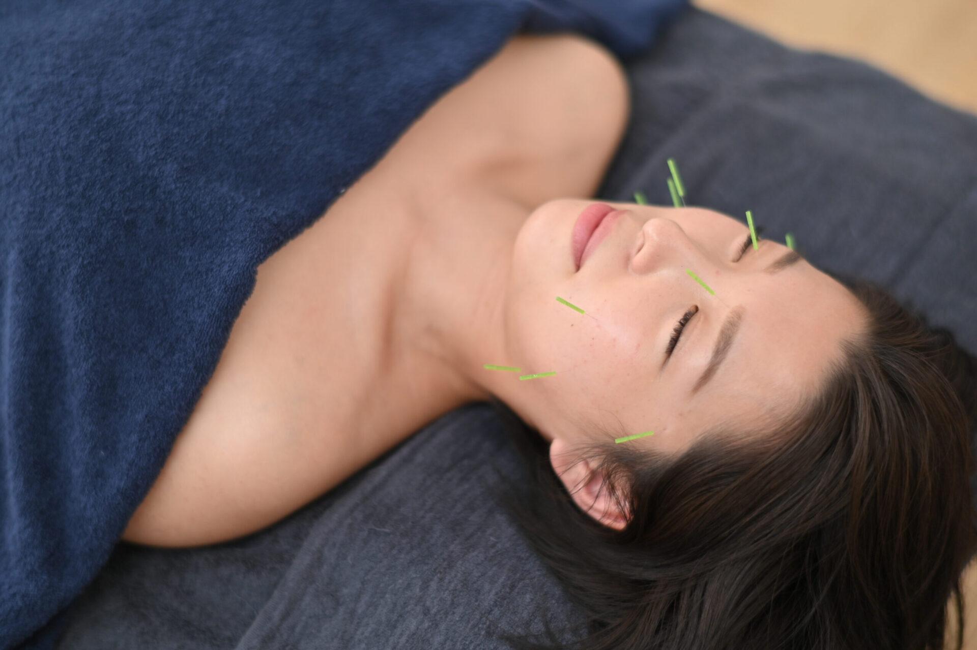 鍼ごこち美容鍼:イメージ